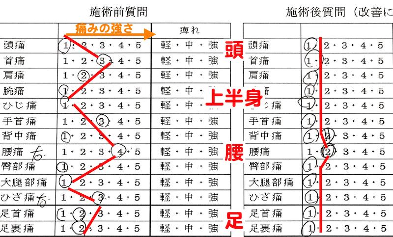 広島の口コミ整体マッサージ_腰痛改善に腱引き2