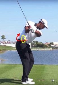 ゴルフのスイングの時に脇腹やお腹が痛い時の治療方法2