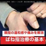 ばね指治療の基本をマスター・親指のひっかかりや痛みを無くす治療法を考える / メルマガ