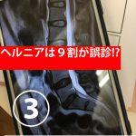 ヘルニアは治る!ヘルニアは9割が誤診と言われるが・・・ヘルニアの原因と治療方法③ヘルニアの腰痛と脚が痺れるメカニズム