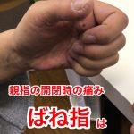 【広島】腕の痛み・ばね指の治療 方法やばね指の原因を考える。